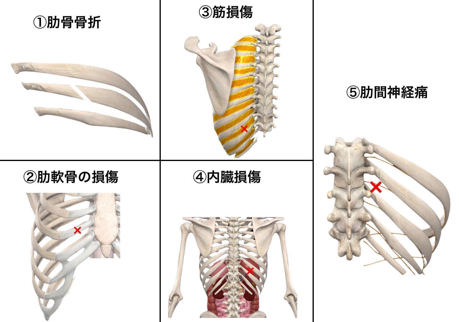 押す 痛い 肋骨 下 右 と